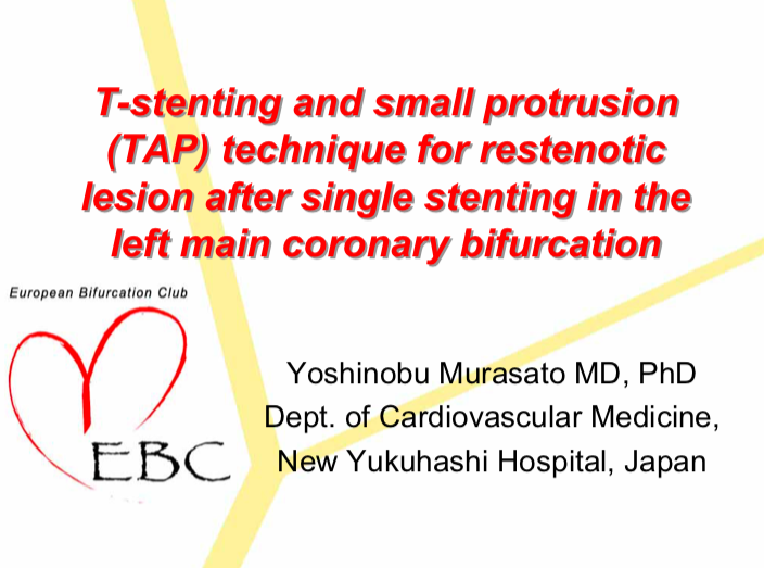 T-stenting and small protrusion (TAP) technique for restenotic lesion after single stenting in the left main coronary bifurcation