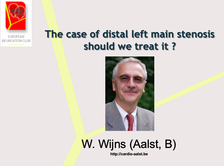 The case of distal left main stenosis: Should we treat it? – No