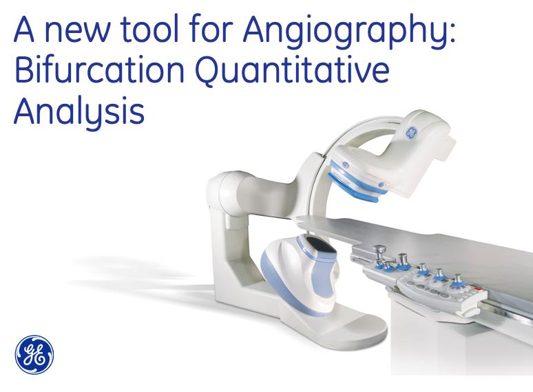 A new tool for Angiography – Bifurcation Quantitative Analysis