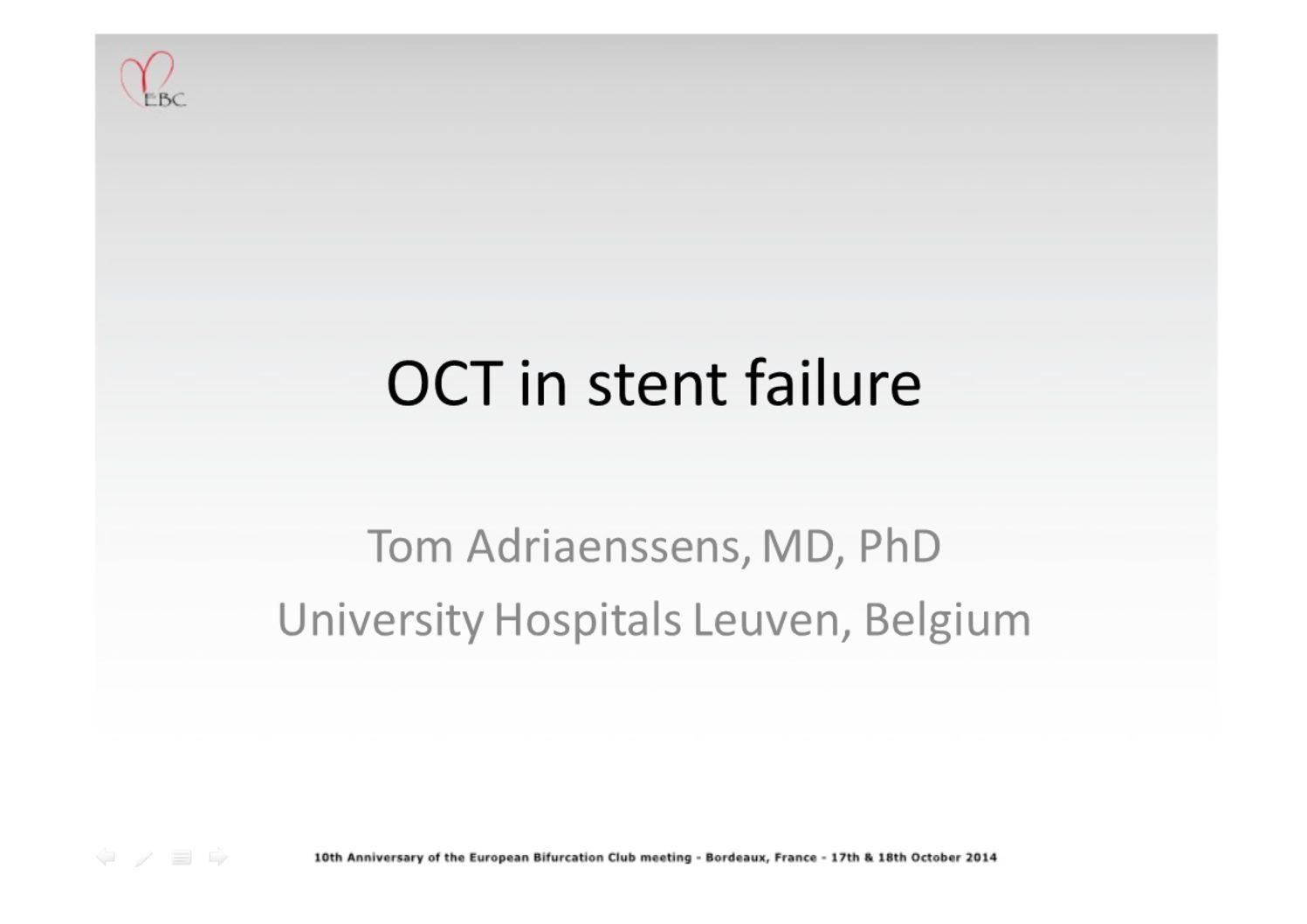 OCT in Stent Failure