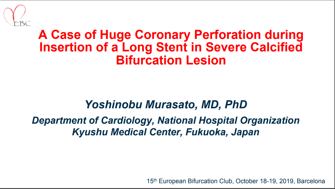 A case of huge coronary perforation during insertion of a long stent in severe calcified bifurcation lesion