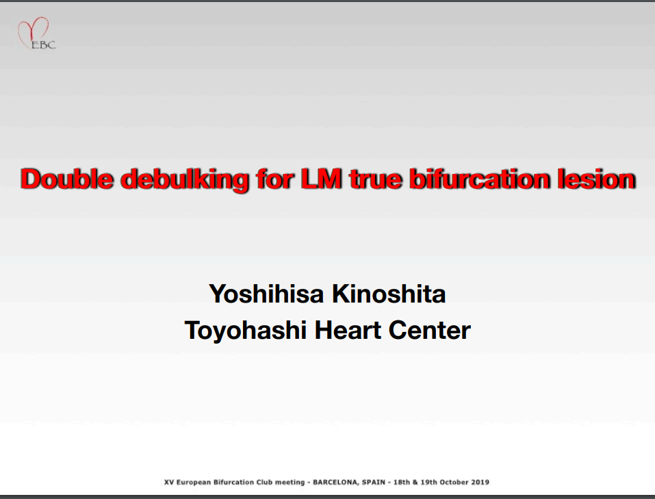 Double Debulking for LM True Bifurcation Lesion