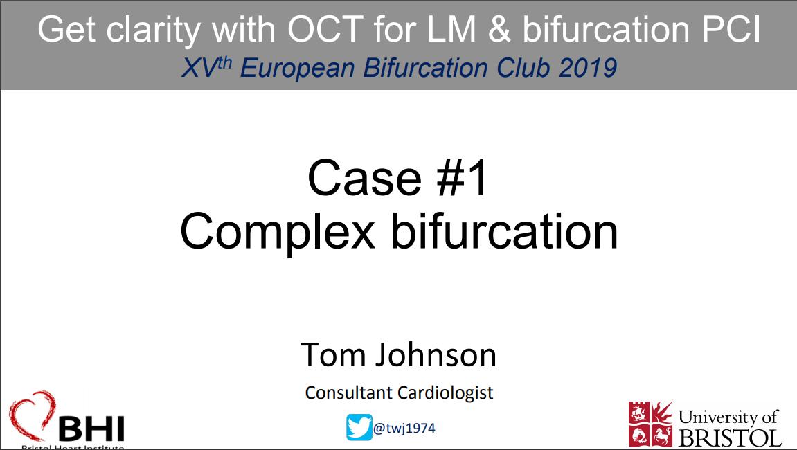 Complex Bifurcation
