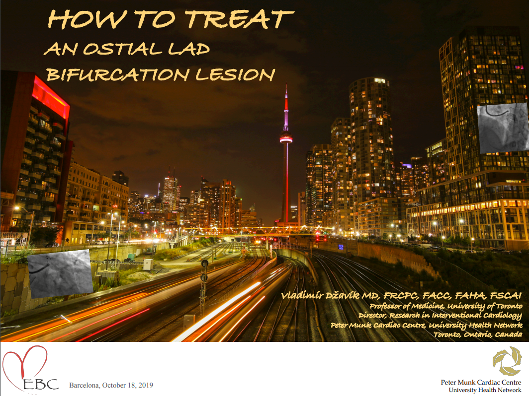 How to treat an Ostial LAD Bifurcation Lesion